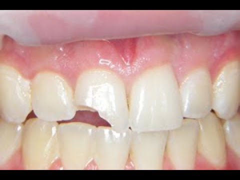 (New) Fix a chipped or broken tooth at home, cheap!